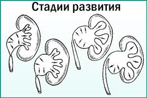Стадии развития пиелоэктазии