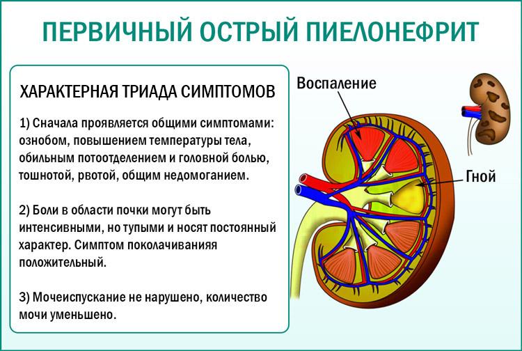 Симптомы при пиелонефрите