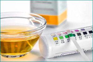 Причины появления глюкозы в моче