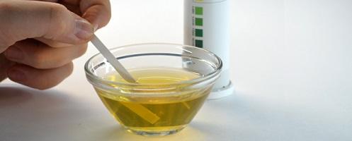 Причины повышения сахара в моче и норма его содержания
