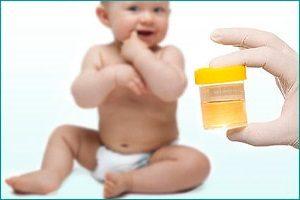 Норма ацетона в моче у ребенка