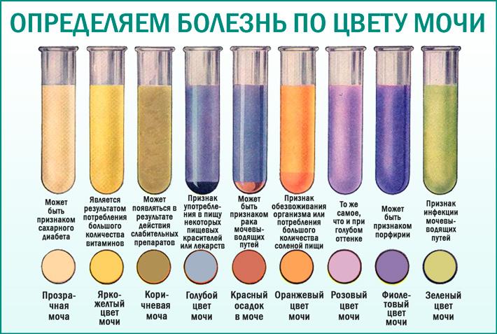 Цвет мочи и проблемы со здоровьем