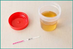 Как определить лейкоциты в моче