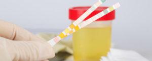 Моменты при проведении исследования мочи на сахар