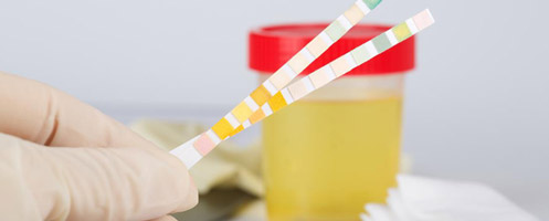 Алгоритм сбора суточного анализа мочи на сахар