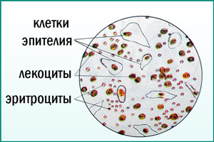 Лейкоциты и эритроциты в анализе мочи