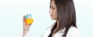 Анализ мочи при менструации