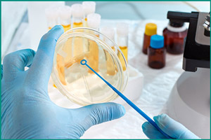 Анализ мочи на наличие бактерий в моче
