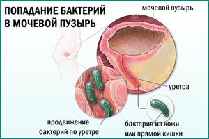 Пути проникновения бактерий в мочевой пузырь