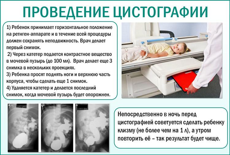 Проведение цистографии детям