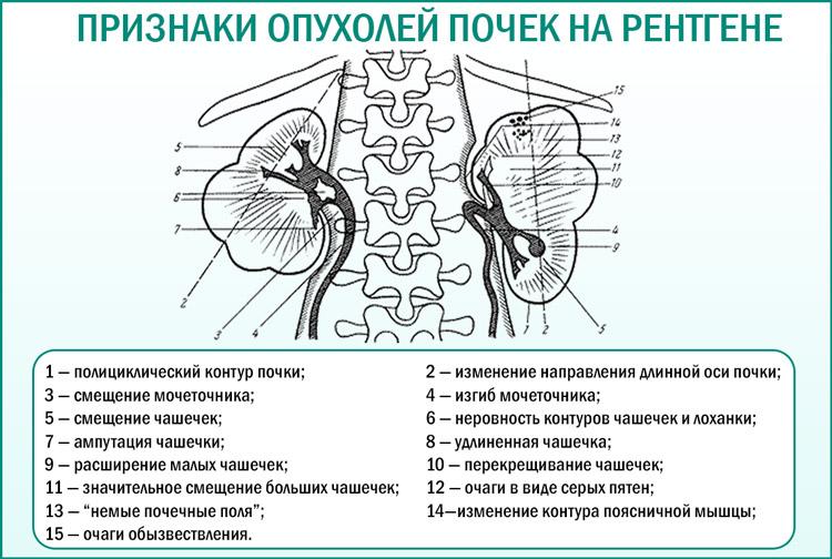 Признаки опухолей почек на рентгене