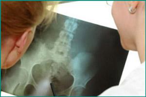 Рентгеновский снимок мочевого пузыря