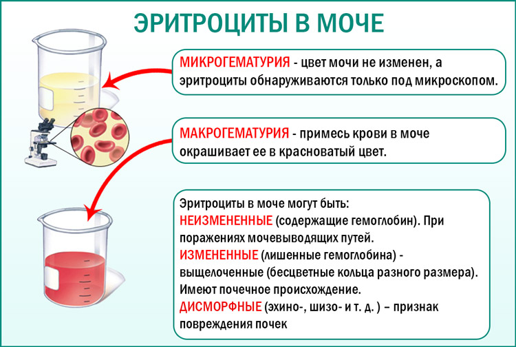 Эритроциты в анализах мочи