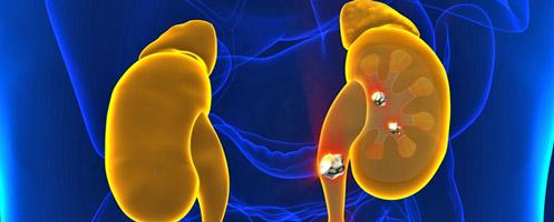 Фосфатные отложения в моче: степень опасности и лечение