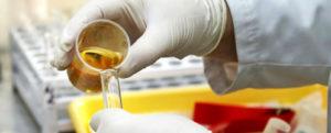 Причины пиурии и норма содержания лейкоцитов в моче
