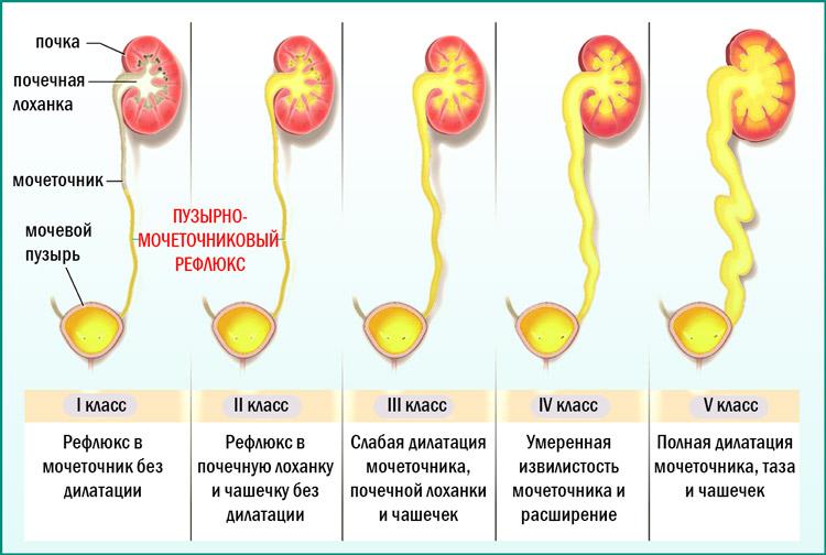 Обратное поступление урины в почку из мочевого пузыря