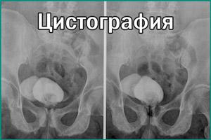 Снимок микционной цистографии