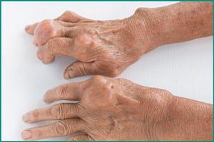 Тофусы на руках