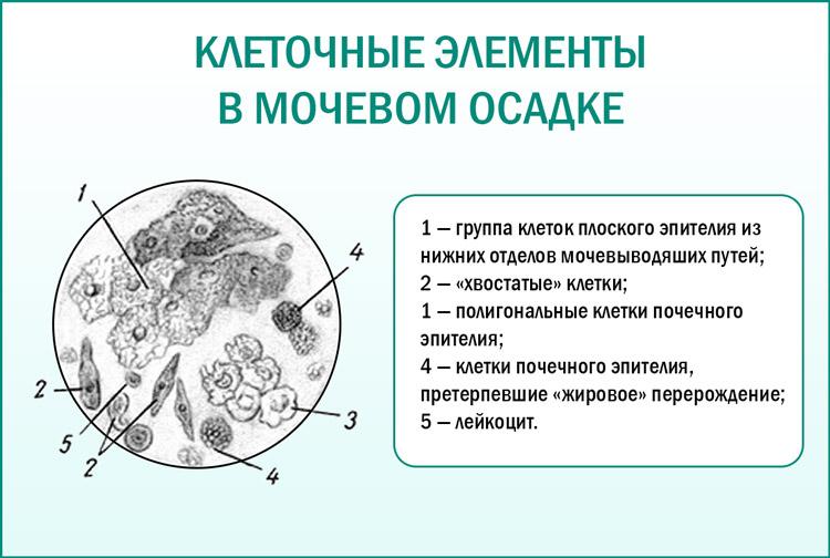 Анализ мочи под микроскопом