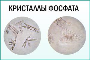 Кристаллы фосфата в моче