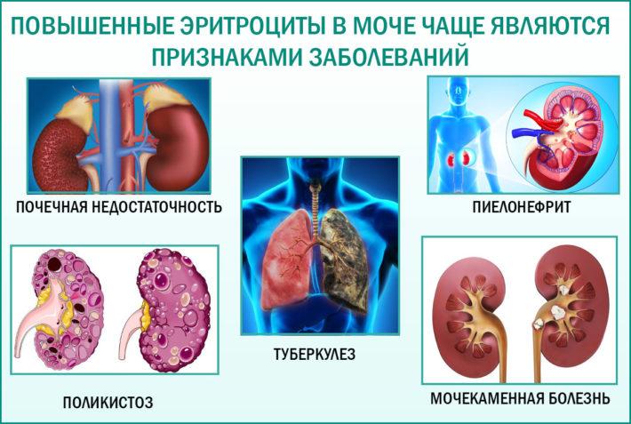 Повышенные эритроциты