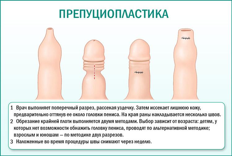 Проведение операции препуциопластика