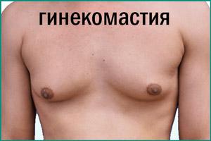 Подросток с гинекомастией