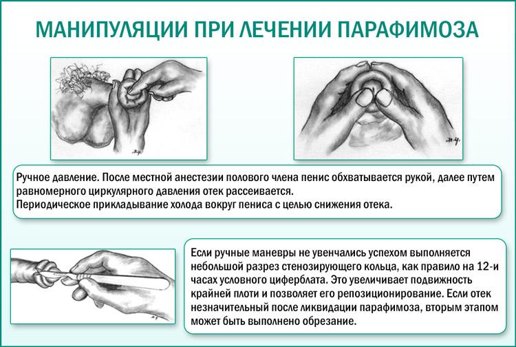 Способы лечения парафимоза