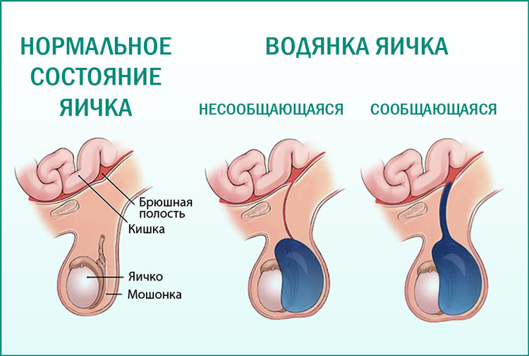 Виды гидроцеле