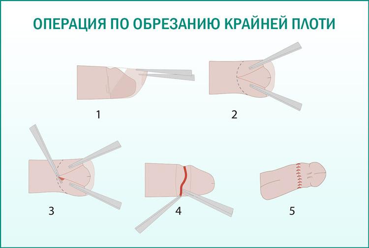 Проведение операции по обрезанию
