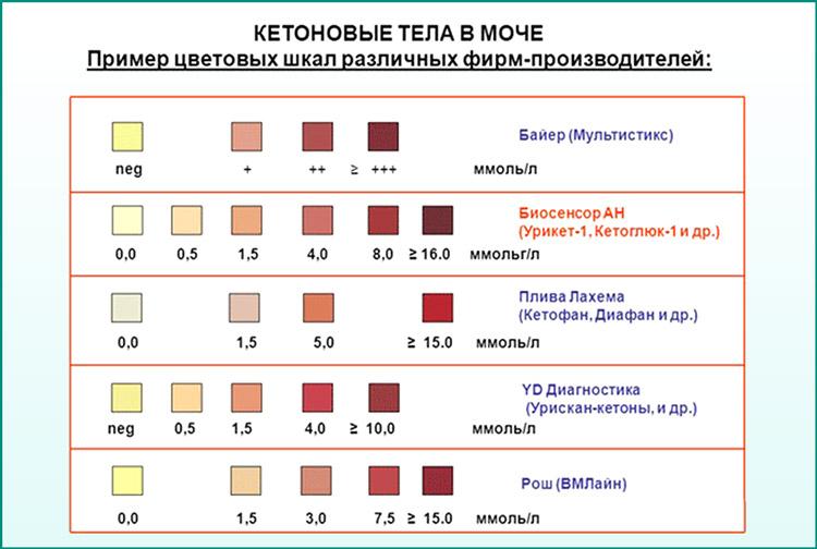 Определение кетоновых тел в моче