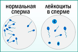 Лейкоциты в сперме