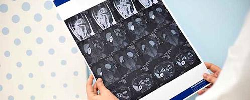 Основные причины и методы лечения рака пениса