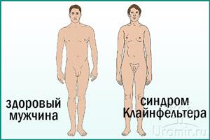 Признаки синдрома Клайнфельтера