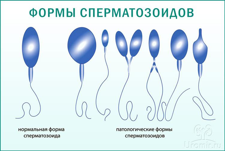 Здоровые и патологические формы сперматозоидов