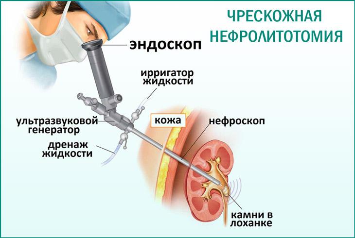 Процедура литотрипсии