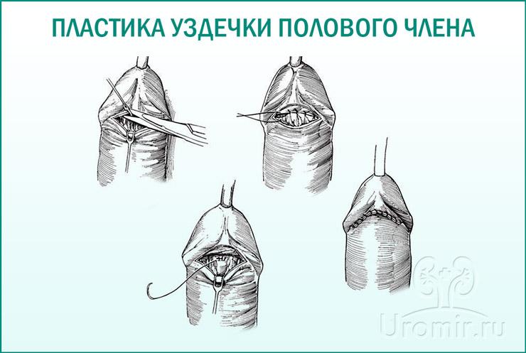 Операция на пенисе